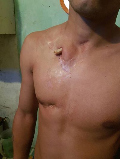 Un preso de Batán está hace dos meses con un hueso afuera y sólo le dan gasas