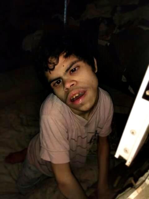 IOMA cortó la entrega de su único alimento a un discapacitado de La Plata