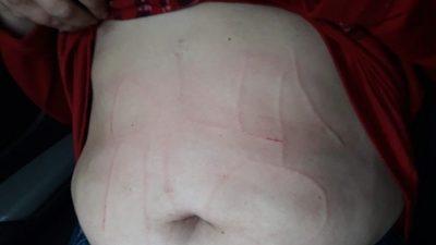 """Amenazaron, secuestraron y torturaron a una docente en Moreno, escribieron en su cuerpo """"Olla no"""""""
