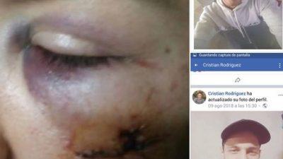 """Cuatro chicas denunciaron que un joven las golpeó afuera de un bar y una policía les dijo: """"El solo les pegó a todas, un groso"""""""