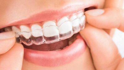Cómo cuidar y preservar tu ortodoncia invisible