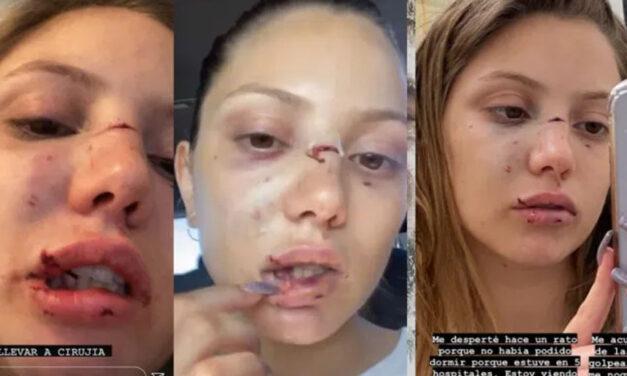 Feroz golpiza a una joven en Hurlingham: le fracturaron los pómulos, la nariz y perdió dos dientes